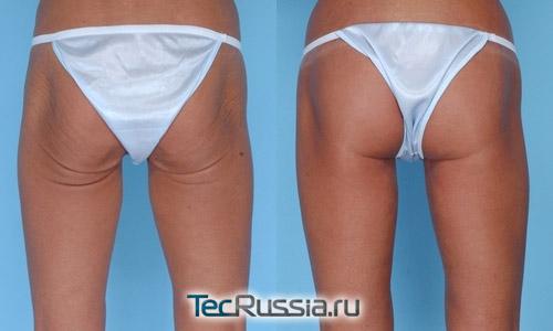 фото до и после подтяжки кожи на бедрах