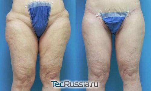 подтяжка внутренней и внешней поверхности бедер, фото до и после, вид спереди