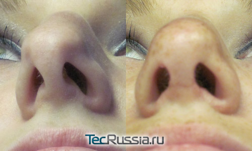фото до и после пластики носовой перегородки в сочетании с открытой ринопластикой