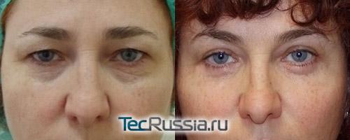 фото до и после пластики лица по новой методике доктора Белого