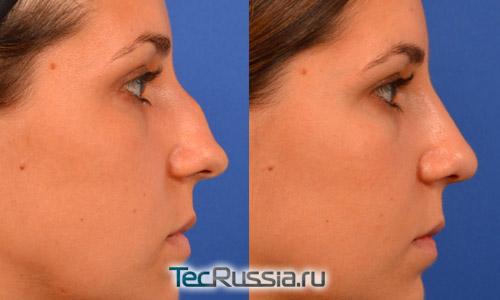 Сколько стоит пластическая операция носа в москве