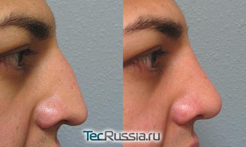 Пластическая операция на нос в санкт-петербурге