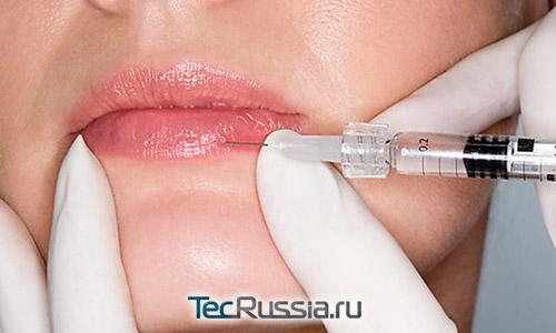 как удалить гиалуроновую кислоту из губ?