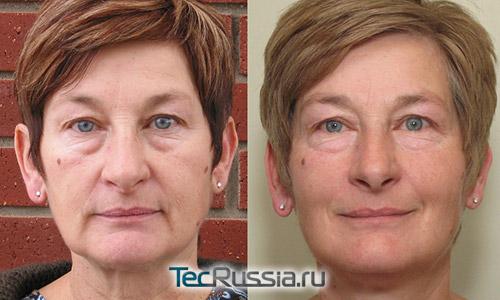 микротоковой терапии лица