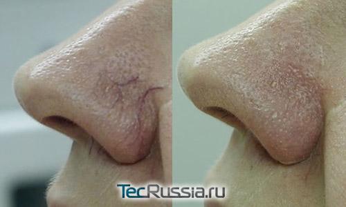 фото до и после удаления телеангиоэктазий с носа лазером