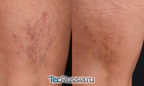 фото до и после склератерапевтического лечения телеангиоэктазий на ноге