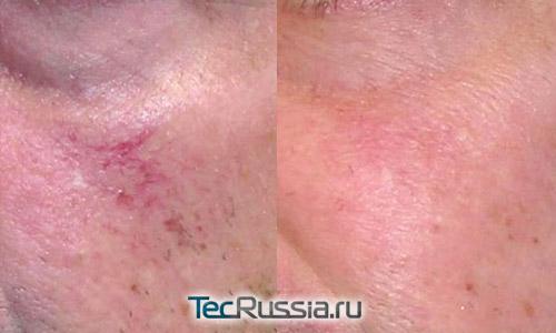 удаление сосудистых звездочек с лица лазером – фото до и после