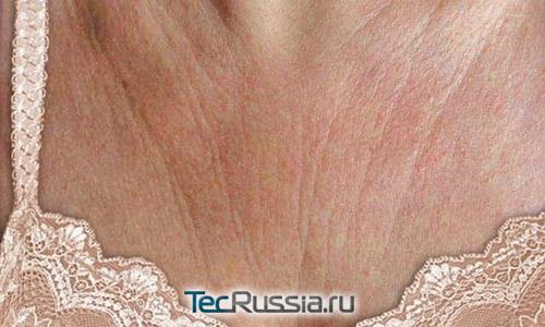 сухая кожа на груди