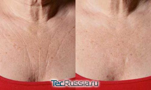 фото до и после коррекции морщин на груди