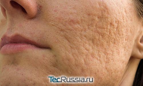 атрофические рубцы после прыщей на лице