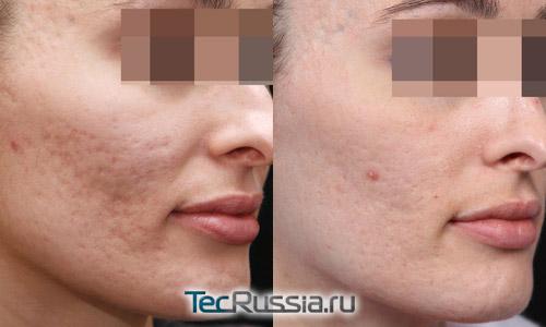фото до и после удаления шрамов от прыщей фракселем