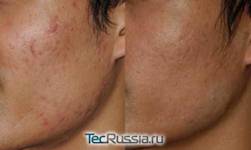 фото до и после химического пилинга шрамов от прыщей