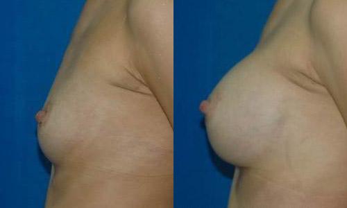 Увеличение грудей у новорожденных