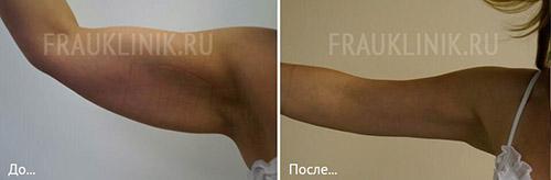 До и после брахиопластики