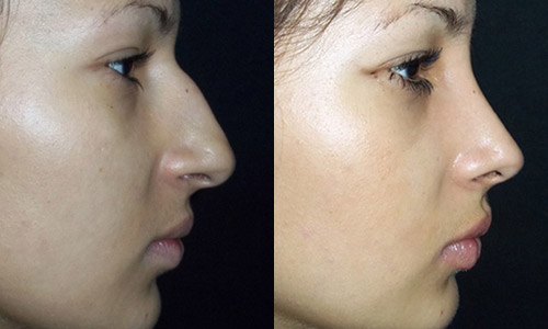 пациентка 2 до и после пластики носа, профиль, хирург Алексанян Тигран Альбертович