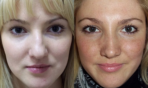 пациентка 1 до и после ринопластики, хирург Алексанян Тигран Альбертович