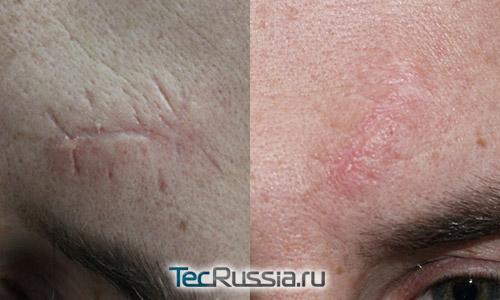 фото до и после лазерного удаления шрама со лба