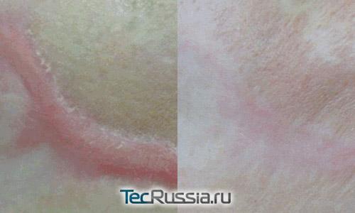 фото шрама до и после курса осветления лазером