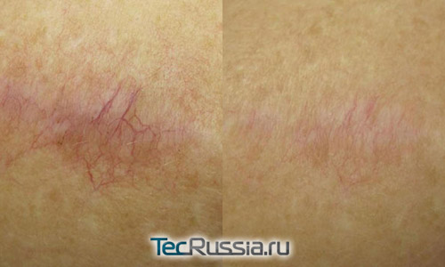 удаление лазером шрама на плече, фото до и после 4-х процедур