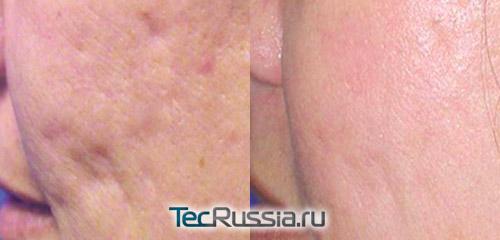 фото до и после мезотерапии без уколов