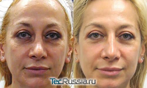 оксимезотерапия без уколов, фото до и после курса процедур