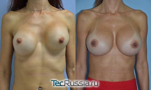 операция по замене грудных имплантов, фото до и после