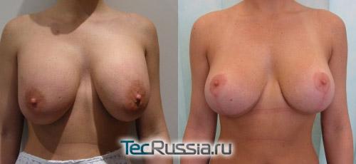 Операции по увеличению грудей в твери