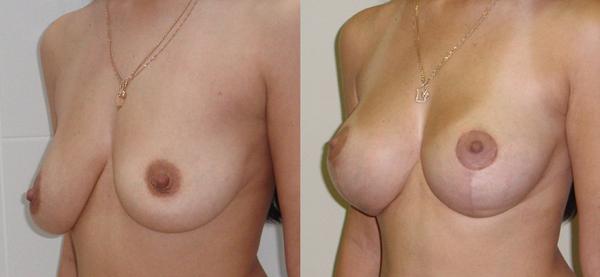 Пластические операции груди в красноярск