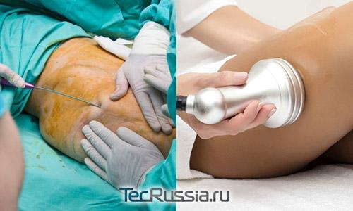 липосакция хирургическая и безоперационная