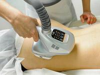 Безоперационная липосакция: 9 способов избавиться от жира без помощи хирурга