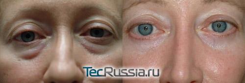 фото до и после удаления мешков (блефаропластика)