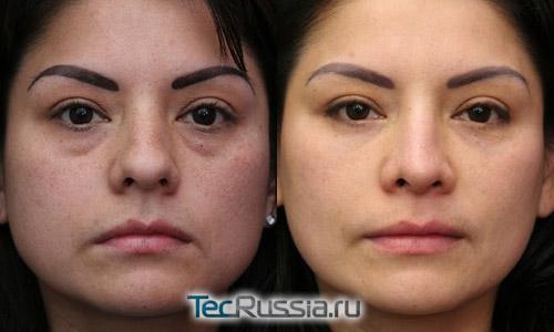 Хирургическое удаление мешков под глазами – фото до и после