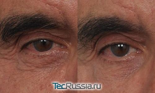 Удаление мешков под глазами без операции – фото до и после
