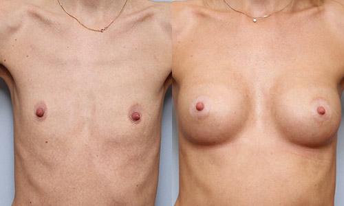 Бесшовное увеличение груди: авторская методика доктора Свиридова