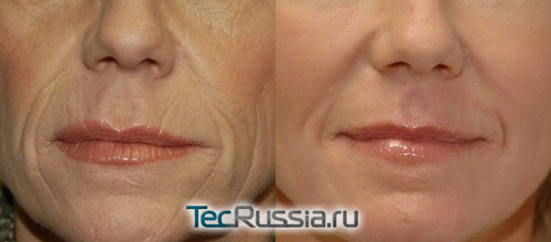 лазерная коррекция периоральных морщин, фото до и после