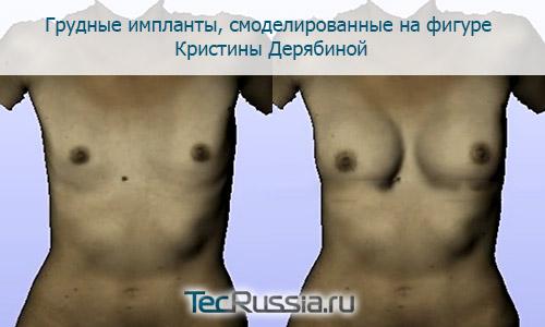 Пластика груди кормление грудью