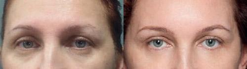 до и после обрабботки верхней трети лица Релатоксом