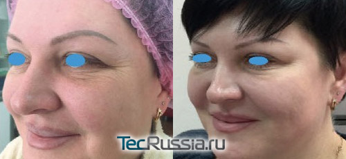 Релатокс – фото до и после инъекций