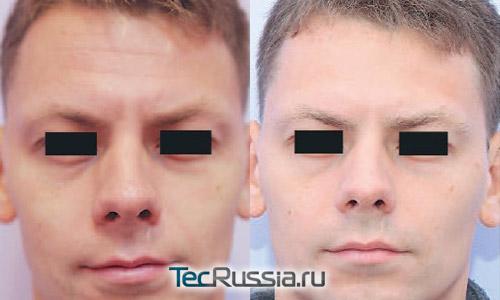 состояние мимических морщин до и после уколов Релатокса
