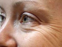 Аппаратная косметология вокруг глаз
