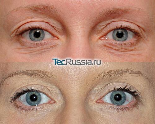 уход против морщин вокруг глаз