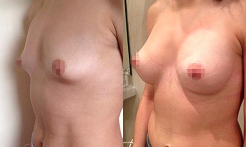 Можно ли делать операцию на груди при месячных