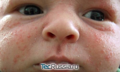 детские прыщи на щеках