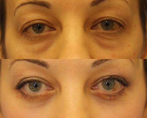 Фото до и после пластики нижних век, пациентка 1, хирург Дерновой С.С.