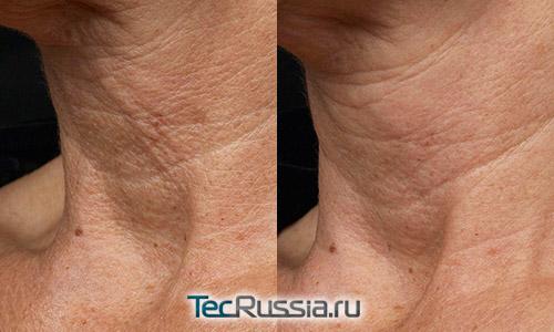 фото до и после фракционной лазерной шлифовки шеи