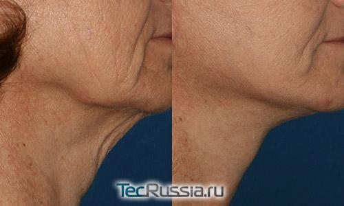хирургическая подтяжка шеи – фото до и после