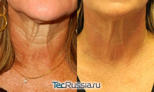 фото до и после RF-лифтинга шеи