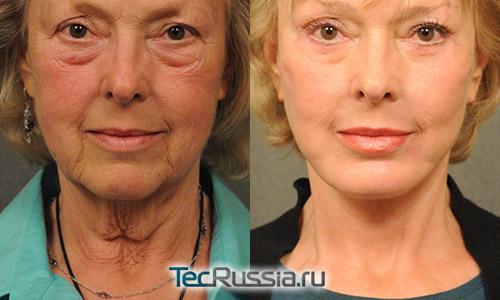 до и после комплексной подтяжки лица и шеи в сочетании с блефаропластикой