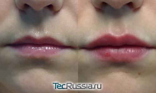 увеличение губ филлером Белотеро