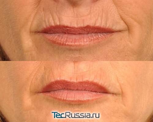 фото до и после инъекций Belotero